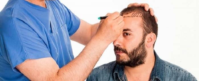 مراحل انواع روش های کاشت موی جلوی سر و شقیقه ها