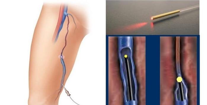 درمان رگها و عروق واریس پا و صورت با عمل لیزر