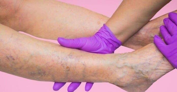 علت تشکیل و تشدید واریس پا، دست و صورت و راه درمان