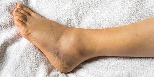 علت ورم پا در سالمندان