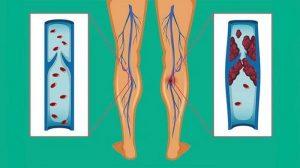 جلوگیری از لخته شدن خون(ترومبوز)