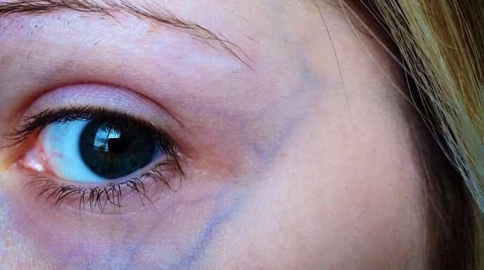درمان عروق واریسی اطراف چشم با اسکلروتراپی، لیزر و میکروسرجری