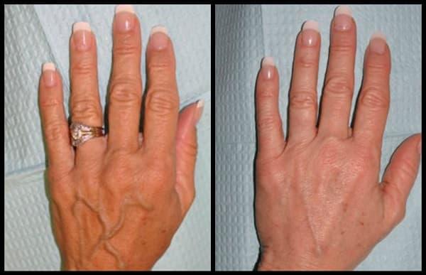 درمان واریس دست