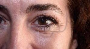 علل بروز رگهای قابل مشاهده در اطراف چشمها