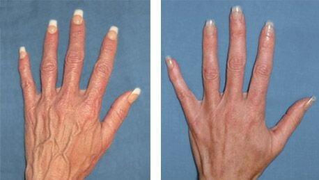 چه عواملی باعث میشود که رگهای دست معلومتر و برجستهتر شوند؟