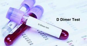 آزمایش دی دایمر برای تشخیص لختهی خون یا ترومبوز